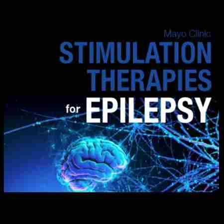 Mayo Clinic Stimulation Therapies for Epilepsy in Rochester on 16 Sep